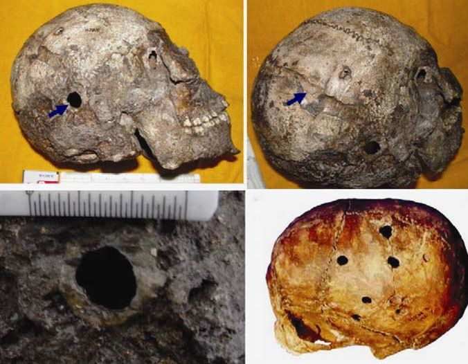 Skull with brain surgery discovered in India